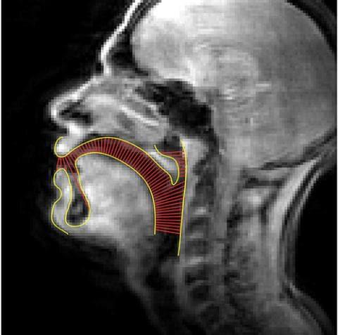 MRI of human head